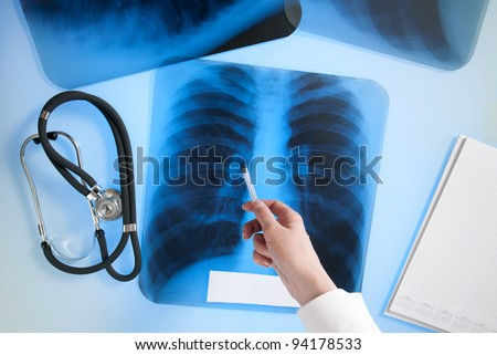 Close up of doctor's hand pointing on x-ray image of lungs - stock photo