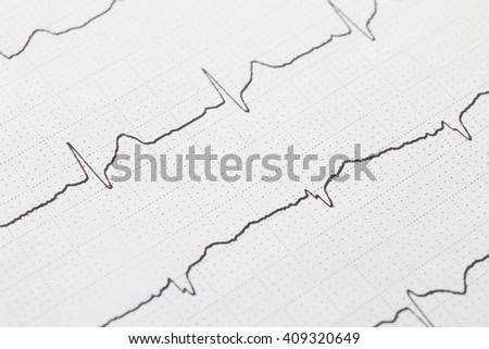 Close up of electrocardiogram chart background