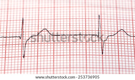 Close up of electrocardiograph in paper - stock photo