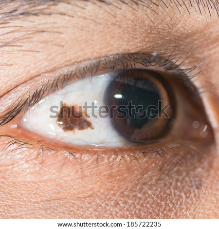 Close up of eye examination, conjunctival nevi.