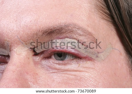 Close up of eye one day after eyelid surgery - stock photo