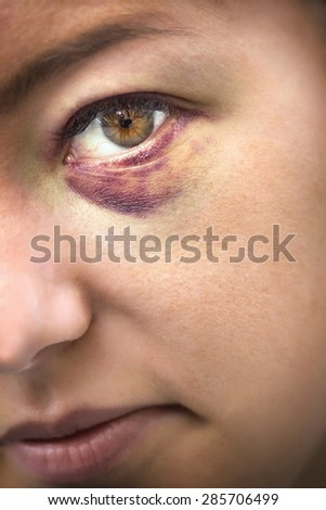 Close Up of eyes of a woman domestic violence victim - stock photo