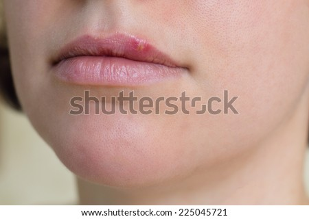 Close-up of female lips suffering from herpes - stock photo