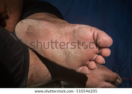 Close up of foot with cracks