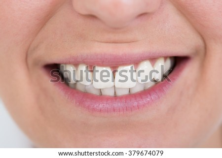 Close-up Of Happy Female Smiling With Healthy White Teeth