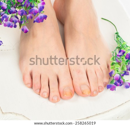 Close Up of human foot with a cracked and peeling toe nail on the largest toe. Toenail Fungus at the peak - stock photo