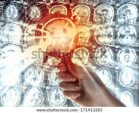 Close up of human hand holding magnifier examining x-ray results - stock photo