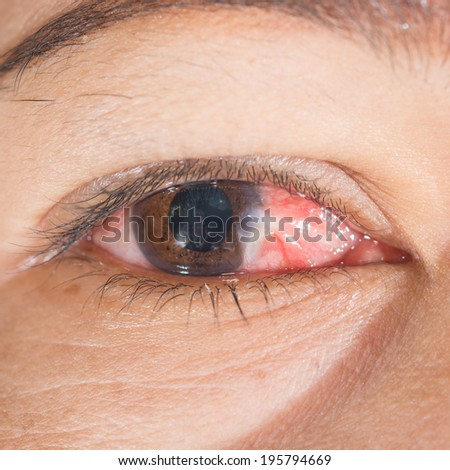 Close up of inflamed pterygium eye during eye examination. - stock photo