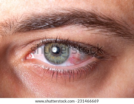 Close Up of irritated red blood eye. - stock photo