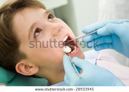 Close-up of little boy opening his mouth during dental checkup - stock photo