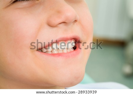 Close-up of little boy smiling at dentist office - stock photo