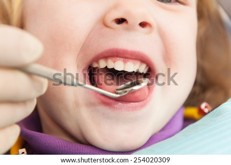 Close-up of little girl opening his mouth wide. Little girl is having her teeth examined by dentist  - stock photo