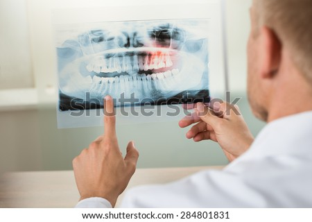 Close-up Of Male Doctor Pointing At Teeth X-ray - stock photo