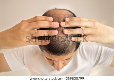 close up of man controls hair loss - stock photo