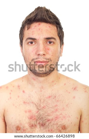 Close up of  man face with chickenpox isolated on white background - stock photo