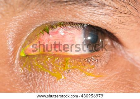 close up of nodular episcleritis during eye examination. - stock photo