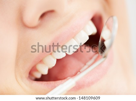 Close-up of open mouth during oral checkup at the dentist�¢??s - stock photo