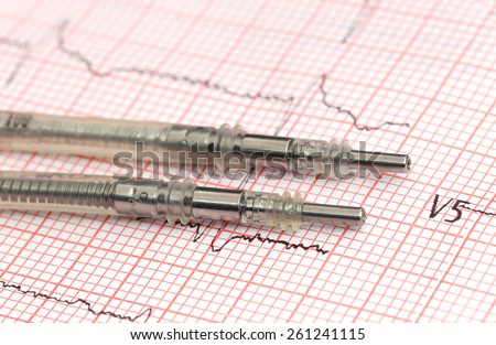 Close up of Pacemaker leads on electrocardiograph - stock photo