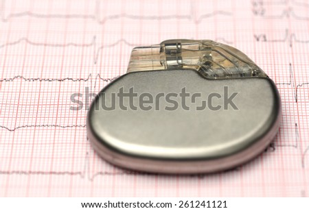 Close up of Pacemaker on electrocardiograph - stock photo