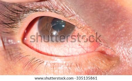 close up of periorbital ecchymosis during eye examination. - stock photo