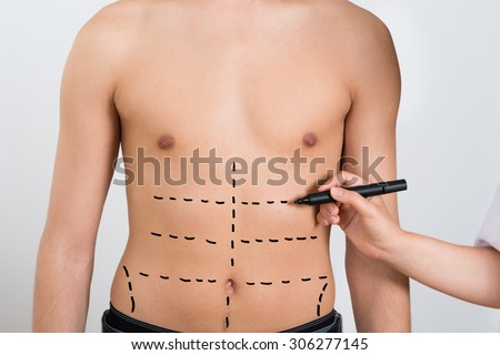 Close-up Of Person Hands Drawing Correction Lines On Abdomen Of Man - stock photo