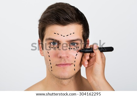 Close-up Of Person Hands Making Lines With Pen On Face Of Young Man - stock photo