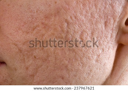 Close up of problematic skin with deep acne scars on cheek - stock photo