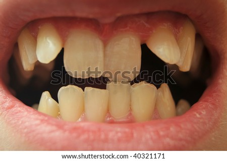 Close up of really crooked teeth - stock photo