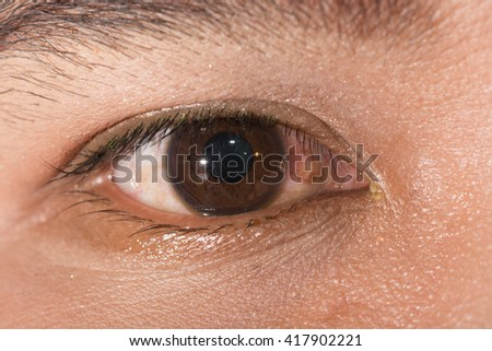 close up of retain corneal foreign body during eye examination. - stock photo