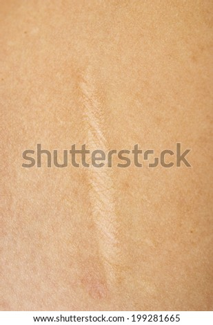 close up of scar on skin - stock photo