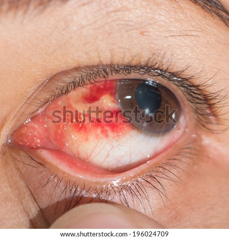 Close up of subconjunctival hemorrhage eye during eye examination. - stock photo