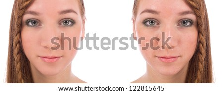 Close-up of teenager face with and without acne isolated on white - stock photo