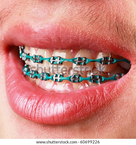 Close-up of teeth with braces - stock photo