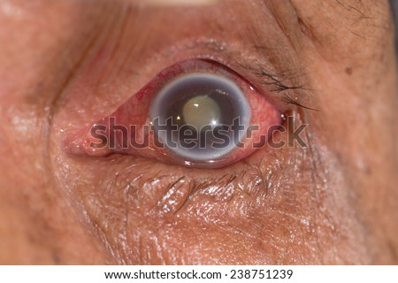 close up of the acute angle closure glaucoma during eye examination. - stock photo