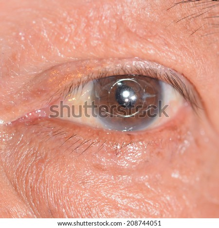 close up of the anterior intra ocular lens during eye examination. - stock photo