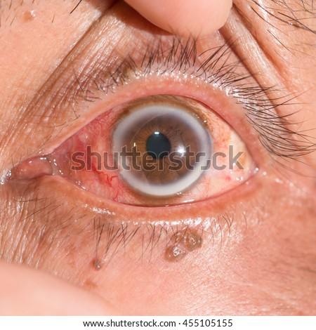 close up of the arcus senilis during eye examination. - stock photo