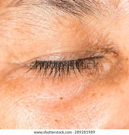 close up of the blepharochalasis during eye examination. - stock photo