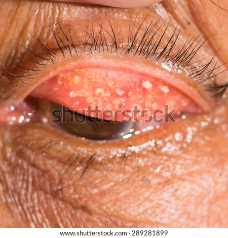 close up of the chronic conjunctivitis with concretion during eye examination. - stock photo