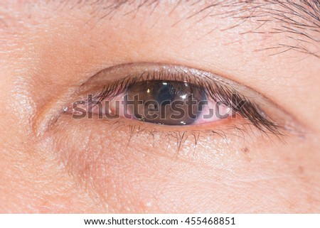 close up of the metallic foreign body on conea (rust ring) during eye examination. - stock photo