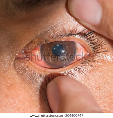 "Close up of the metallic foreign body on cornea ""rust ring"" during eye examination. - stock photo"