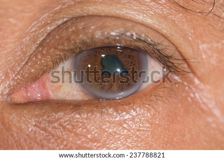 Close up of the posterior synechiae during eye examination. - stock photo