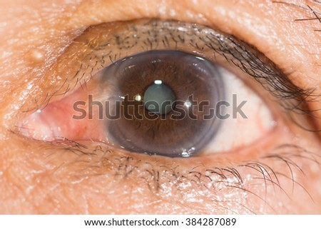 Close up of the pterygium and senile cataract during eye examination. - stock photo