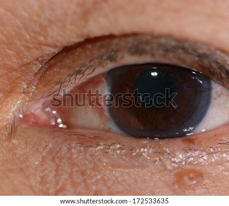 Close up of the pterygium during eye examination. - stock photo