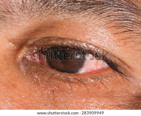 Close up of the rupture globe with iris prolapse during eye examination. - stock photo