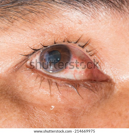Rupture Stock Photos, Images, & Pictures | Shutterstock