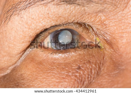 close up of the senile cataract during eye examination, senile cataract, mature cataract, neuclear sclerosis cataract.
