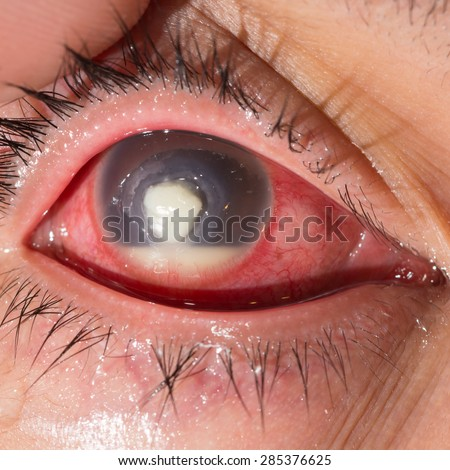 Close up of the severe infected corneal ulcer with hypopyon during eye examination. - stock photo