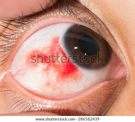 Close up of the sub conjunctival heamorrhage during eye examination. - stock photo