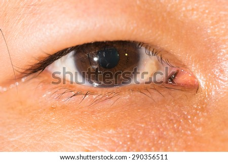 close up of the viral conjunctivitis during eye examination. - stock photo
