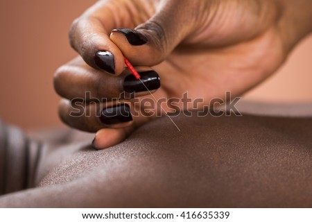 Close-up Of Therapist Giving Acupuncture Treatment To Man In Spa